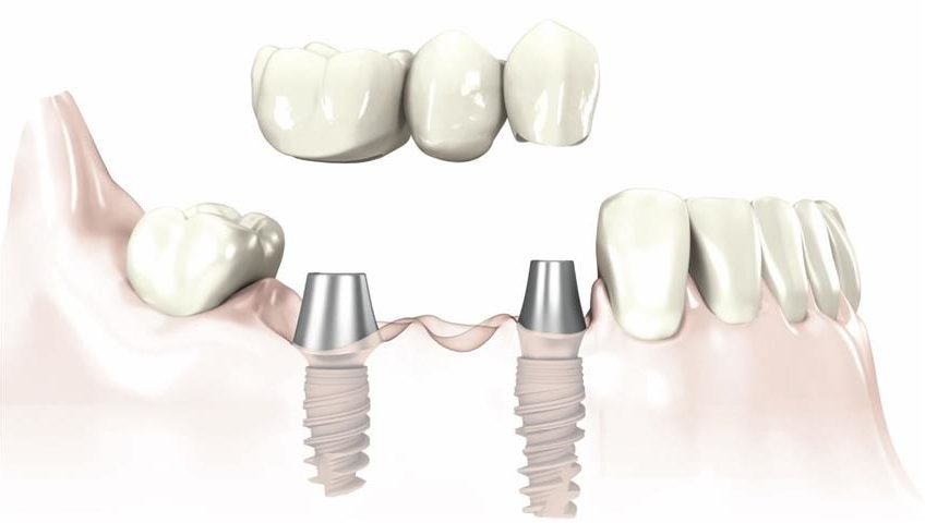 Implants-and-bridge-2-848x480.jpg